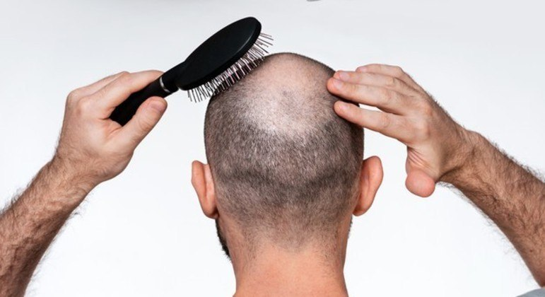 Cientistas descobrem como estresse causa perda de cabelo